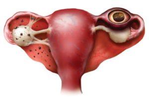Патология беременности