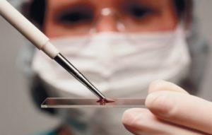 Последствия повышенного пролактина