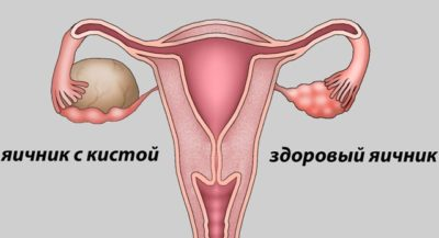 Причины отсутствия менструации
